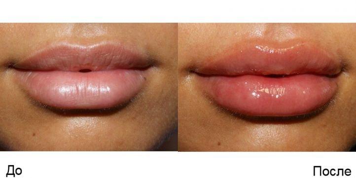 Увеличение губ гиалуроновой кислотой - фото до и после